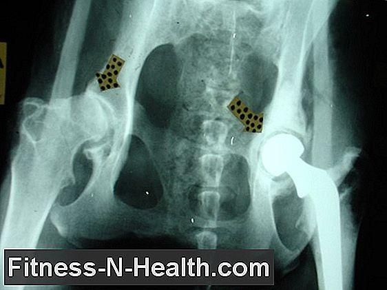 csukló artrózis deformációs kezelés)
