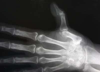 artrózis klinikai diagnosztikai kezelés)