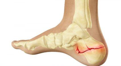 ízületi fájdalom duzzadt a lábak ízületi kezelése