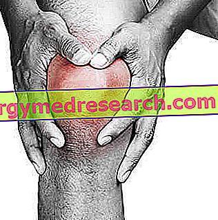 hogyan nyilvánul meg a térd artrózisa)