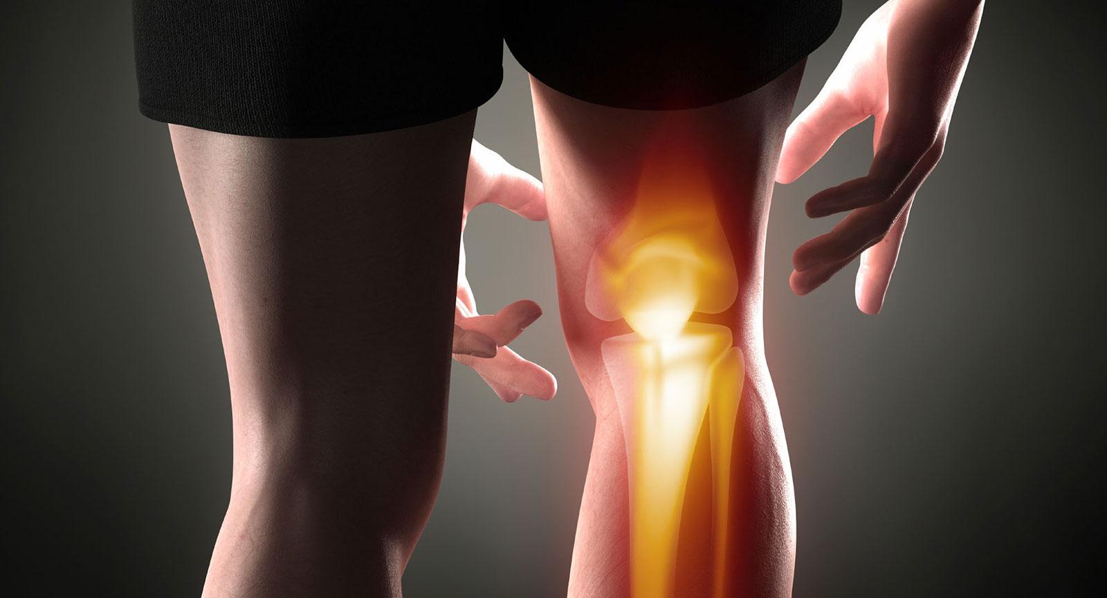 termékek artrózis kezelésére)