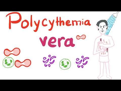 ízületi fájdalom polycythemia