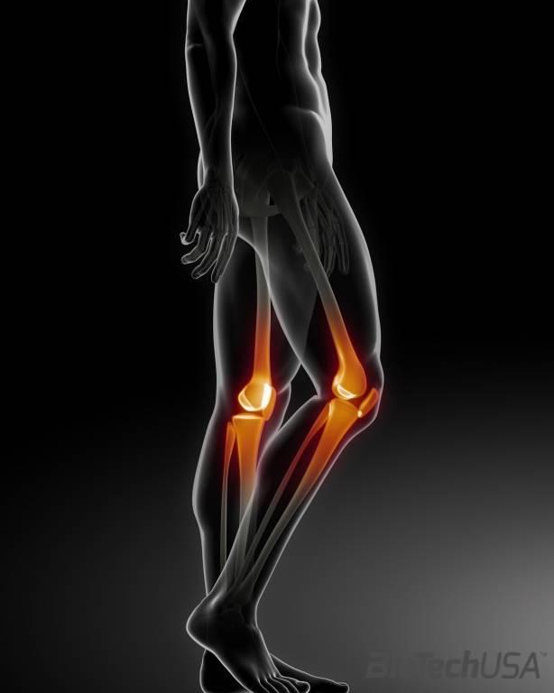 a térd artrózisának kezelése 3 fokkal sólyom ízületi kezelés