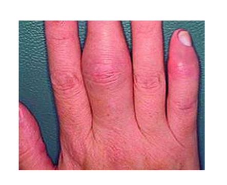 ujjak és lábujjak ízületeinek kezelése)