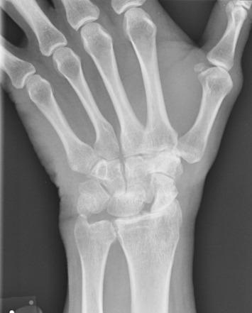 1. fokozatú scaphoid artrosis