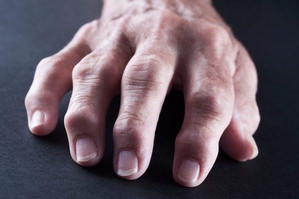 a kéz kis ízületeinek ízületi ízületi gyulladása