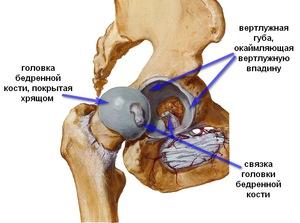 csípőízület ízületi gyulladásának oka)