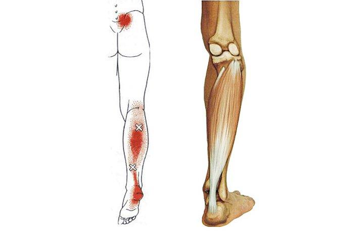 fájdalom a lábak ízületeiben hipotermia után)