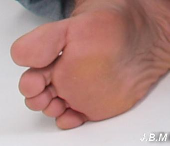 hogyan kezeljük a lábujjak ízületeit)