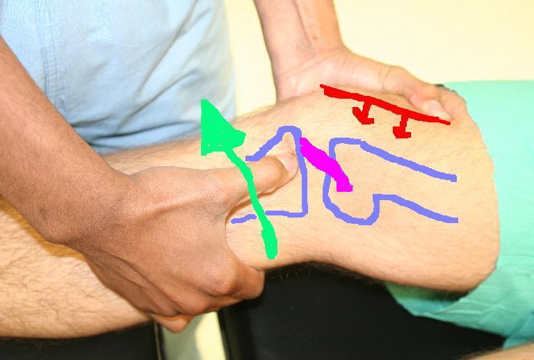 fáj térdízület és kattanások