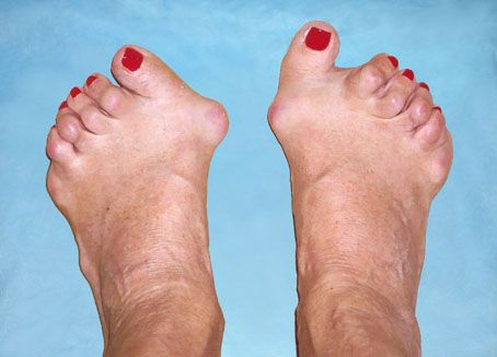 mi köze a lábujjak ízületének gyulladásáig