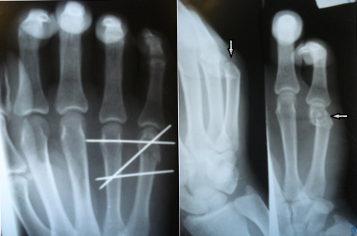 láb metatarsális ízületi fájdalom ízületi és könyök ízületi kezelés