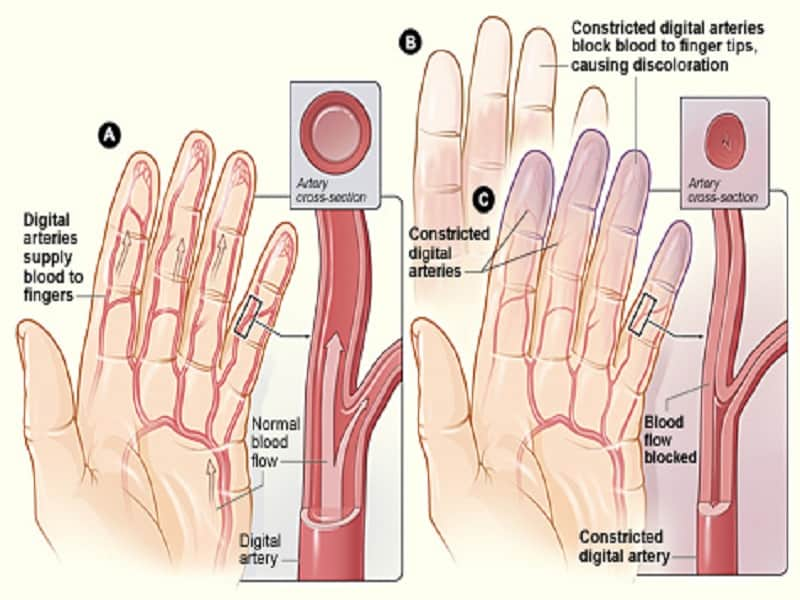 térdízületi fájdalom, hogyan lehet kiküszöbölni a fájdalmat)