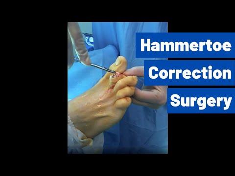fájdalom a lábakban a második ujj ízületében a térd sós kezelése
