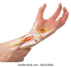 carpal artrosis kezelés ízületi javítás futás után