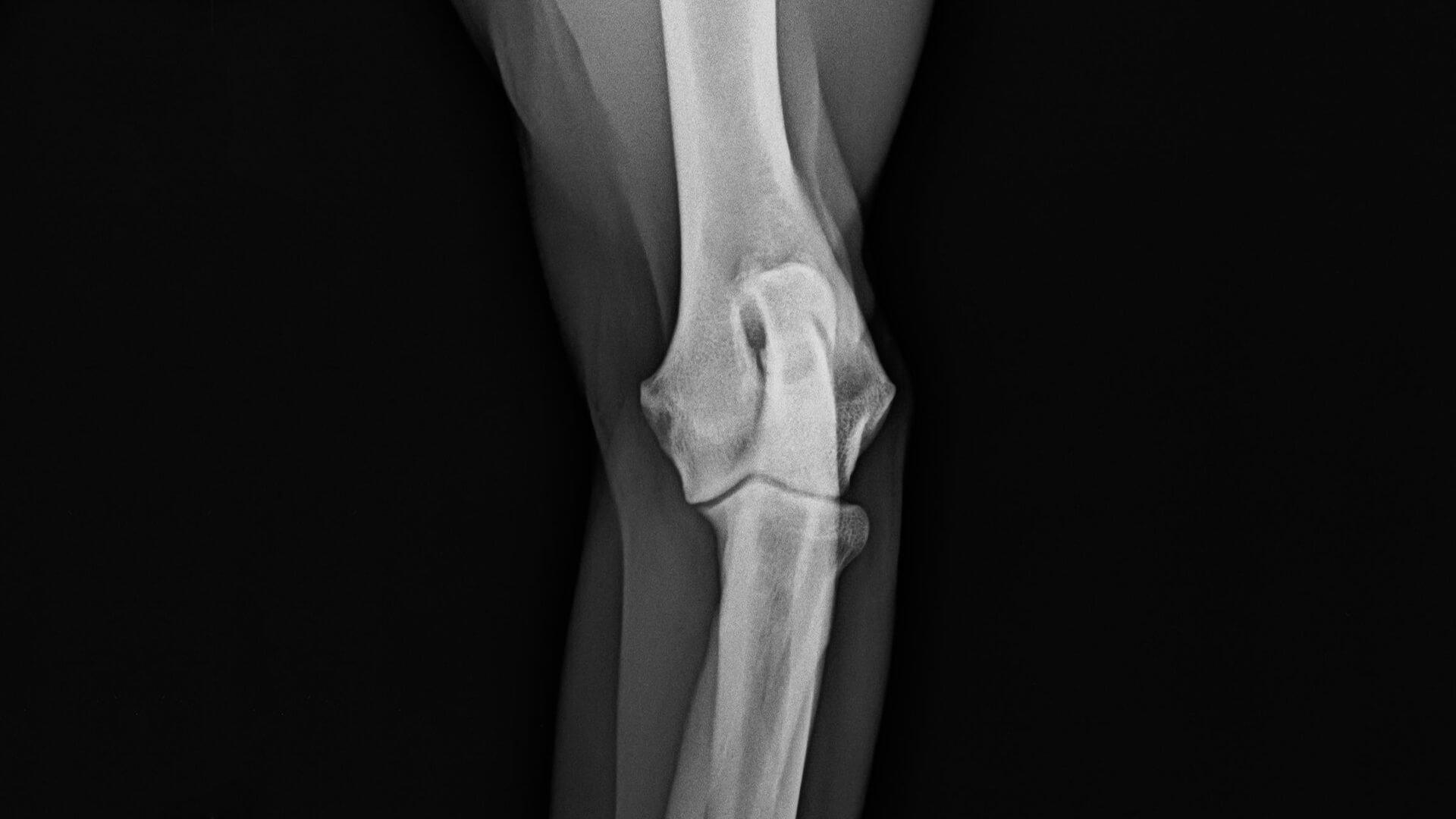 fájdalom a könyökízület külső részén ízületi fájdalom oltások