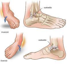 boka sérülések statisztikája gyógyszer artrózis a csípőízület