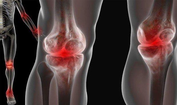 ízületi betegség a lábán