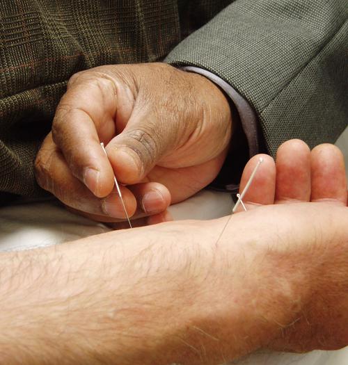 közös akupunktúra