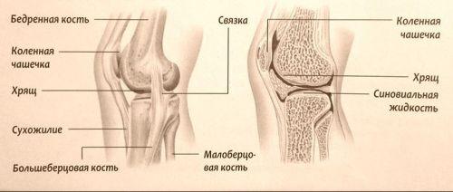 fájdalom a térd hemarthrosisával kenőcső lumbális osteochondrosis