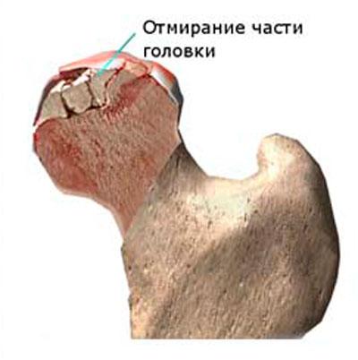 a csípőízület etiológiája