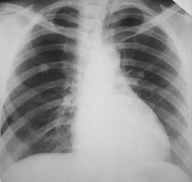ízületi fájdalom tüdőrákkal)