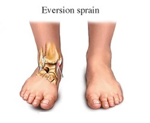 sprain boka kezelése