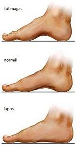a nagy lábujj kezelési fórumának artrózisa)