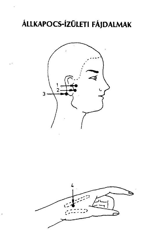 Akupunktúra - fájdalomcsillapítás - FájdalomKözpont