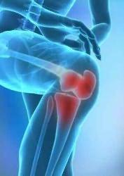 rheumatoid arthritis térddeformáció)