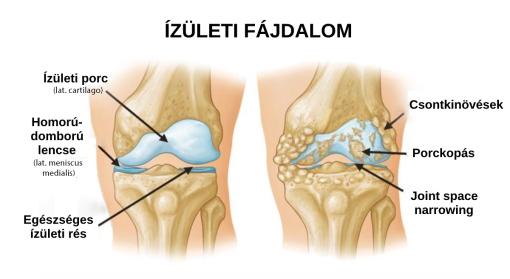 csípőízületi gyulladás enyhíti a fájdalmat hogyan lehet erősíteni az ízületeket és a szalagot
