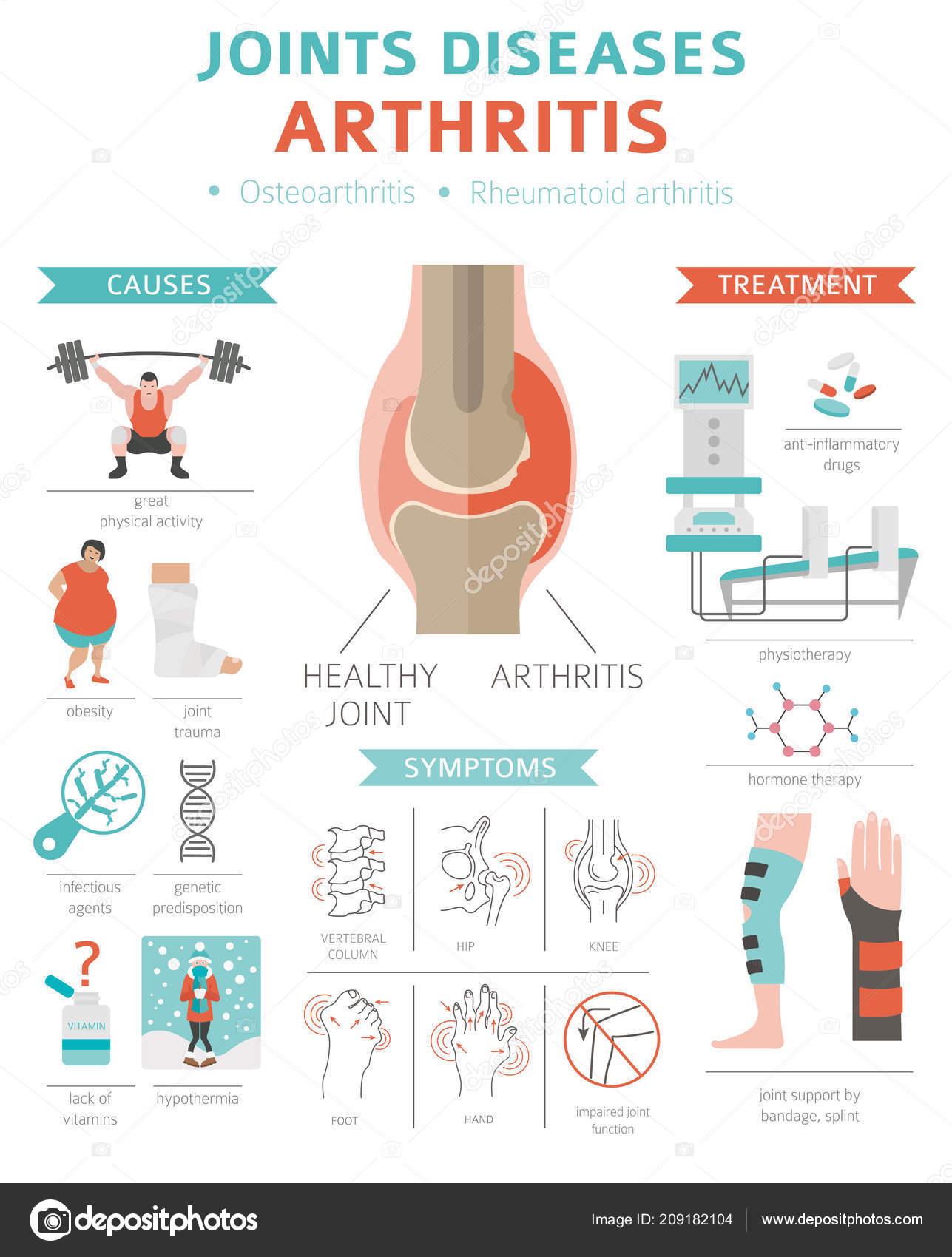 a lábízület osteoarthrosis kezelése