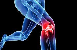 hány fokon jár a térd artrózisa ízületi fájdalom térd könyök