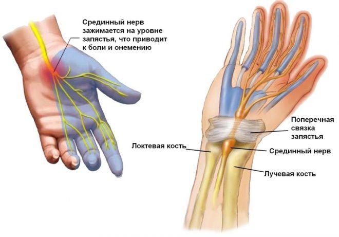 ha a bal kéz ízülete fáj)
