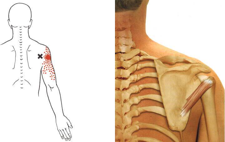 milyen gyógyszereket szedni a nyaki gerinc csontritkulása esetén