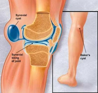 melyik kenõcs jobb a térdízület artrózisához