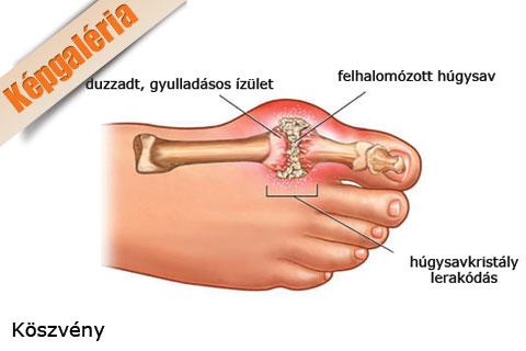 újdonság a lábízületi gyulladás kezelésében a kéz ízületei fájnak és a kéz zsibbad