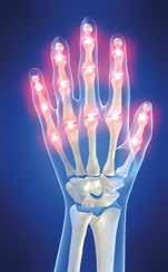 a kéz falai ízületei fájnak vitaminok a térd helyreállításához