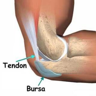 bursitis és térd artritisz