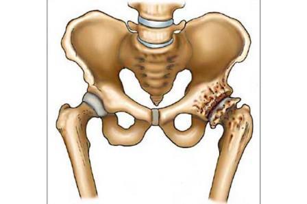 a csípőízület deformált ízületi kezelése