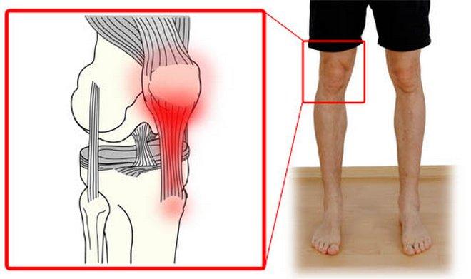 Ín- és szalagszakadás tünetei és kezelése