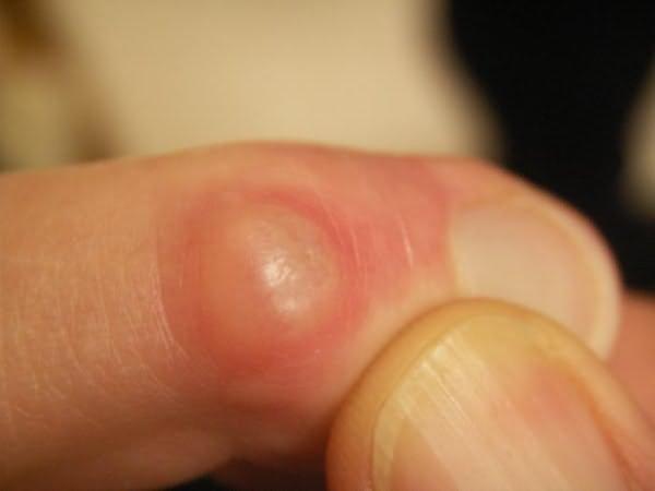 az ujjak ízületeinek deformációja reumatoid artritiszben