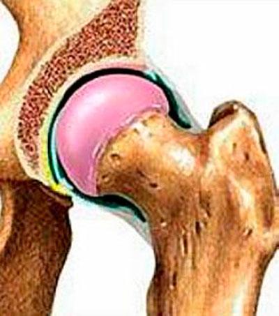 a csípőízület ízületi gyulladásának milgamma)