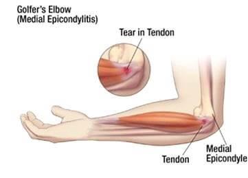 ízületi fájdalom könyökben és alkarban hogyan lehet enyhíteni a térdgyulladást az artritiszben