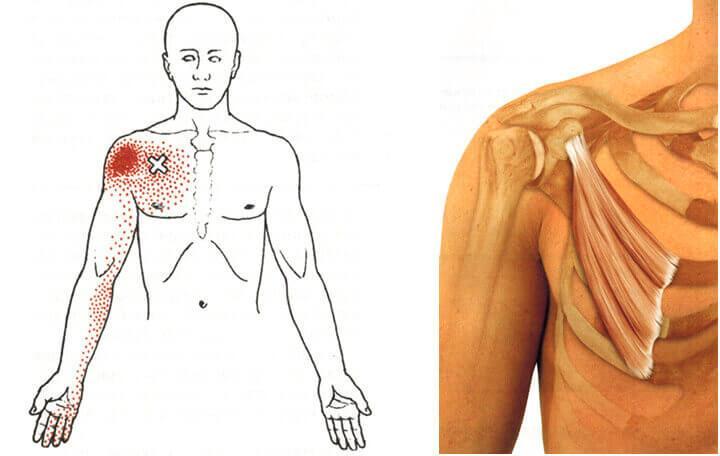 hogyan és hogyan kell kezelni a vállízület osteochondrozist