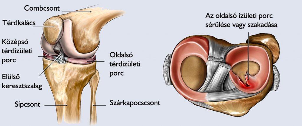 izomfájdalom a csípő területén a lábak ízületeinek kezelésére szolgáló módszerek