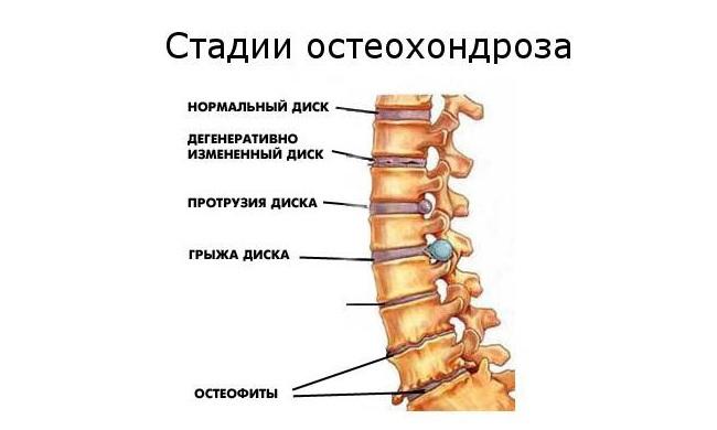 az osteokondrozis gyógyszereinek listája