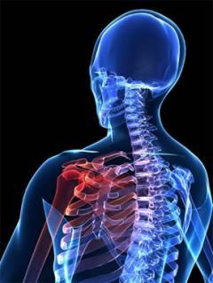 a vállízület 1. fokú artrózisa