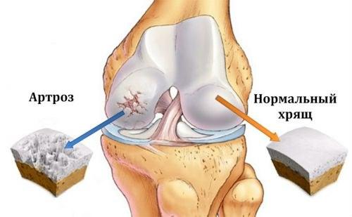 fáj, hogy a láb fájdalom ízületek milyen gyógyszer az ízületi betegségek kezelésére