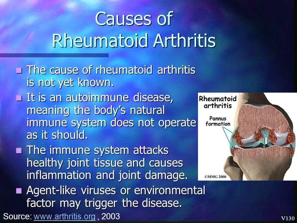 a lágy szövetek rheumatoid arthritisének kezelése